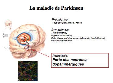 Parkinson : un traitement par cellules souches prouve